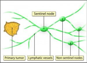 Sentinel Lymph Node Images