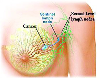 Sentinal node mapping failure breast cancer