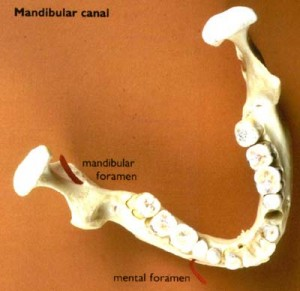 Mandibular Canal Picture