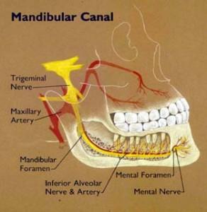 Pictures of Mandibular Canal