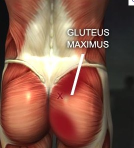 Picture of Gluteus Maximus
