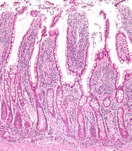 Picture of Intestinal villus