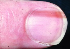 Image of Nail Matrix Disorder