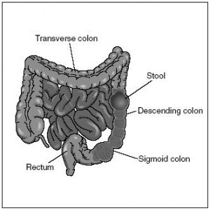 Image of Descending colon