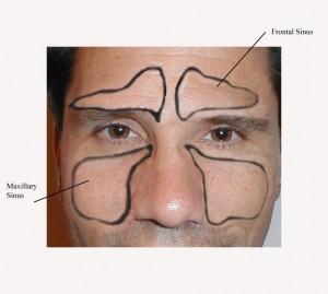 Image of Frontal sinus