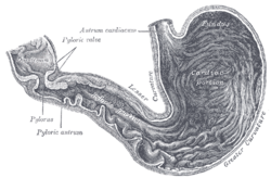 Picture of Duodenal bulb
