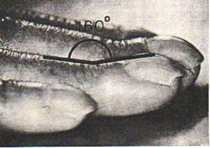 Image of Lovibond's angle