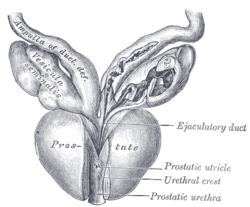 Picture of Prostatic utricle