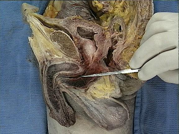 Picture 1 – Spongy urethra