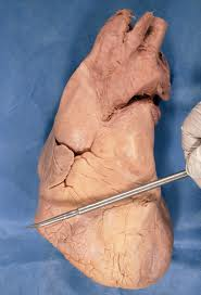 Image of Coronary sulcus