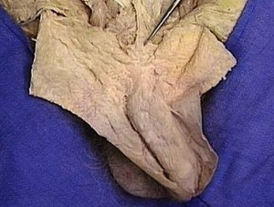 Picture of Fundiform ligament of Penis