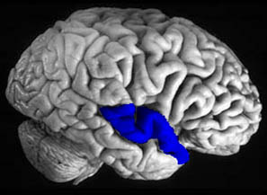 superior temporal gyrus - location, function and pictures, Human Body