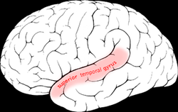 Picture of Superior temporal gyrus