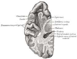 Picture of Transverse temporal gyrus