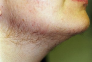 Image of Androgenic hair