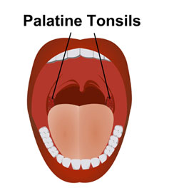 Image of Palatine tonsil