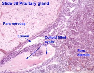 Image of Pars distalis