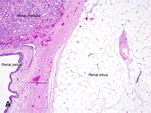Image of Renal sinus