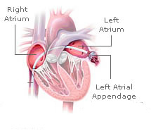 Picture of Left atrial appendage