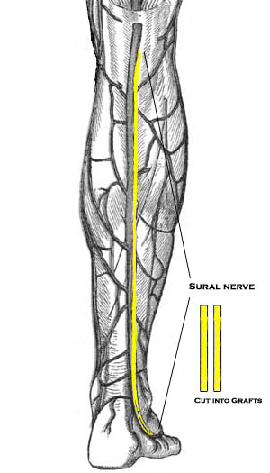 Sural nerve Grafts