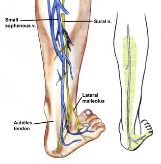 Sural nerve Location