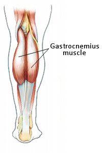 Image of Gastrocnemius