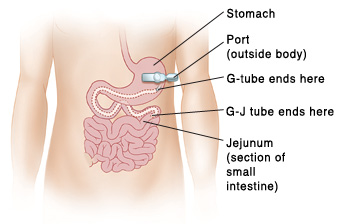 jejunum function, location, histology and related conditions