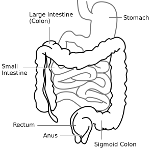 Picture of Sigmoid Colon