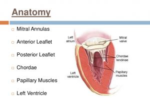 Picture of Mitral Valve
