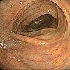 Photo of Descending colon