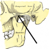 Photo of Zygomatic process