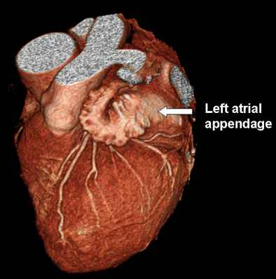 Image of Left atrial appendage
