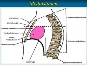 Picture of Mediastinum